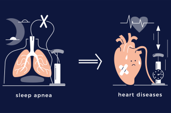 Illustration showing sleep apnea leading to heart disease